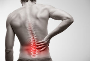 Back Pain and Physical Therapy