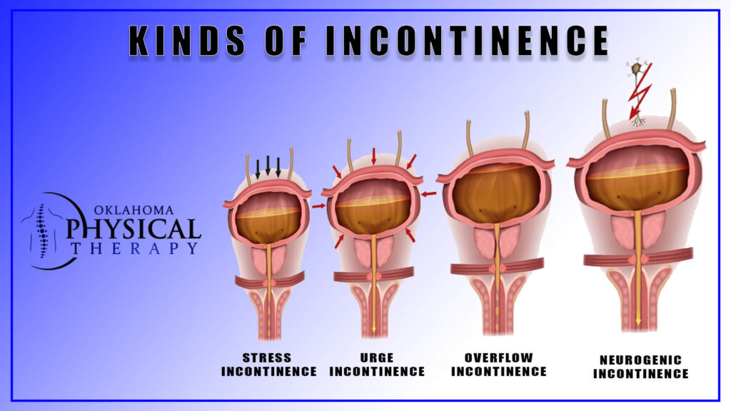 Kinds of Incontinence