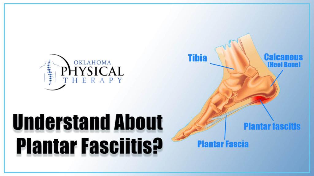 Understand About Plantar Fasciitis