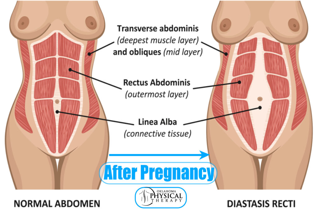 Diastasis Recti can persist right after the pregnancy