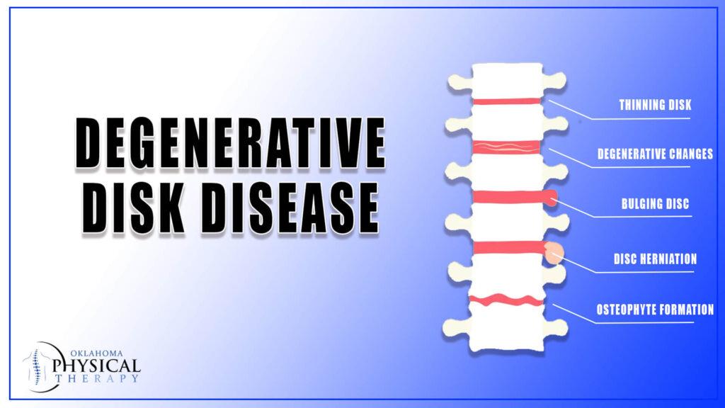 Degenerative disk disease
