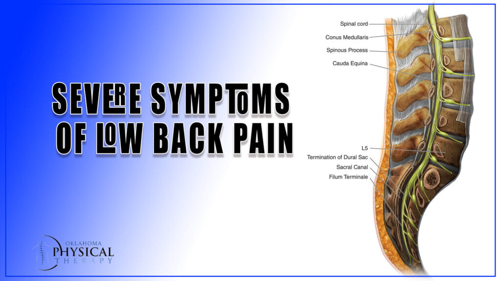 Severe Symptoms of Low Back Pain
