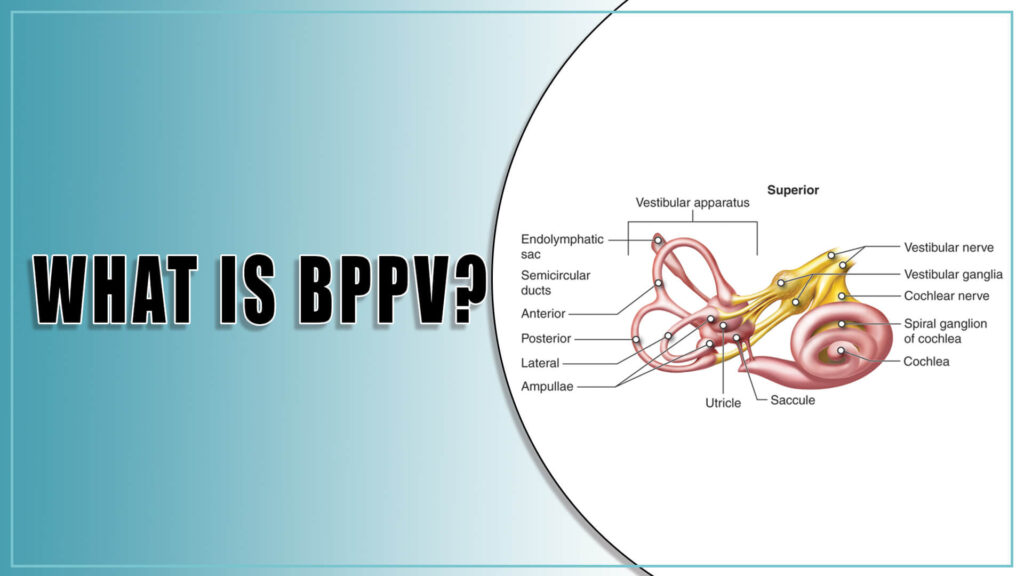 What is BPPV